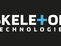 Skeleton Technologies raises €41.3 million in equity round from top European entrepreneurs